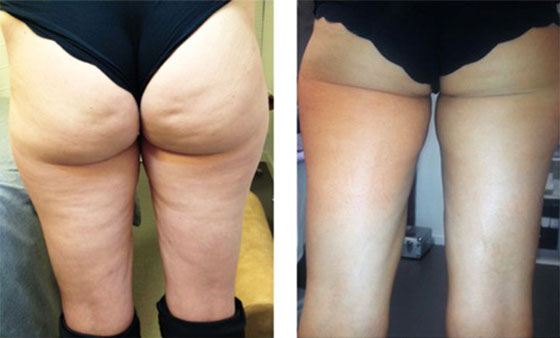 Wirkungsvolle Anti-Cellulite Therapie