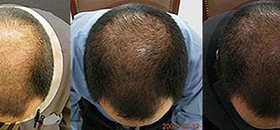 Effektiv gegen Haarausfall