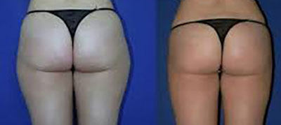 Keine Reiterhosen durch Fett-Weg Therapie